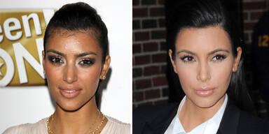 Jüngeres Aussehen mit Laser-Haarentfernung