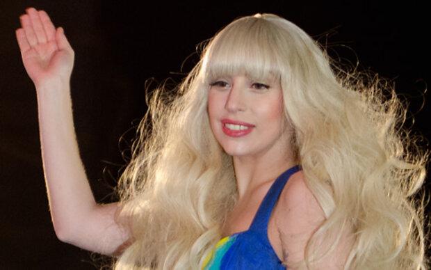 Lady Gaga: Wild auf Faltenunterspritzungen