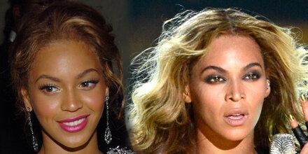 Hat Beyoncé ihre Nase verschmälern lassen?
