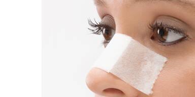 Frauen wollen 'weiße' Nasen
