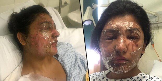 Sie wurde Opfer einer Säure-Attacke – so sieht sie heute aus