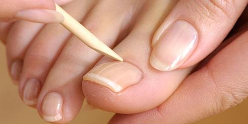 Alles über Fingernägel