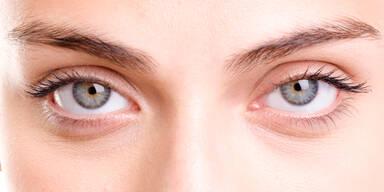Augenringe: Das hilft wirklich