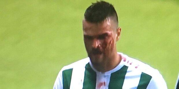 Barac schockt Rapid mit Horror-Verletzung
