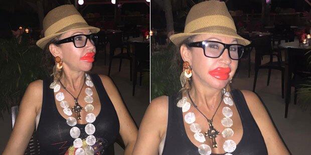 Carmen, was ist mit deinen Lippen passiert?