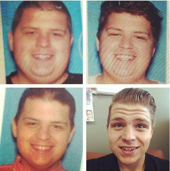 Haut nach 70 Kilo Gewichtsverlust
