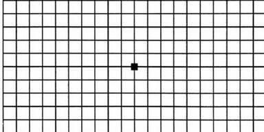 Dieser Test zeigt, ob Sie gute Augen haben