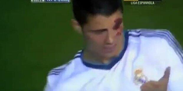 Ronaldo blutüberströmt nach Ellbogencheck