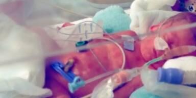 9-jähriges Mädchen bringt Baby zur Welt