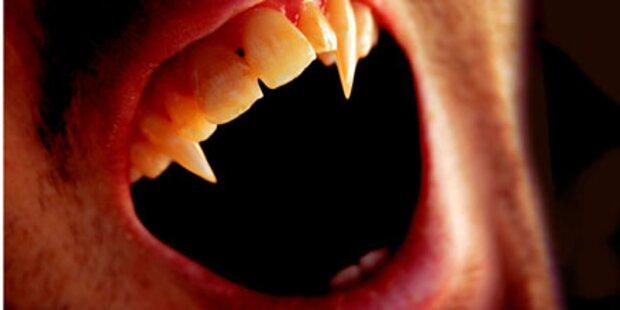 Teenager: Vampir-Attacke auf Freund