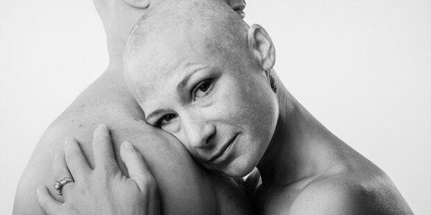 Jeder Vierte in der EU stirbt an Krebs