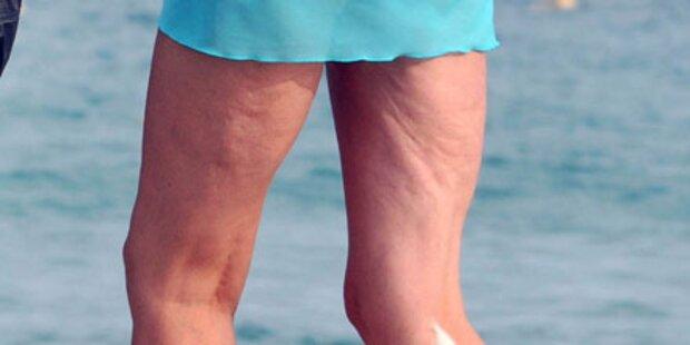 Wer trägt diese Beine zur Schau?