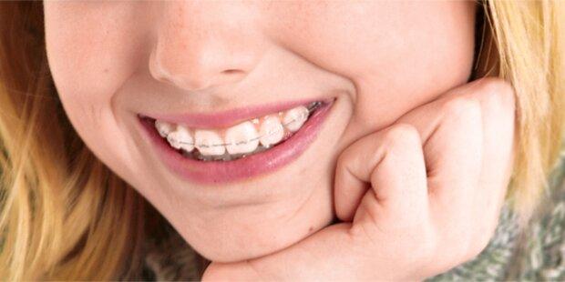 Nationalrat beschließt Gratis-Zahnspangen