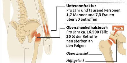 Osteoporose-Tag: Knochendichte ist keine Diagnose