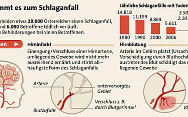 Tagung zu Schlaganfall-Akuttherapie in Klagenfurt