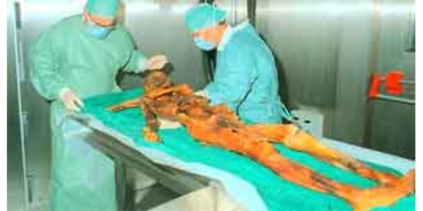 Gletscherman Ötzi starb durch Pfeilschuss