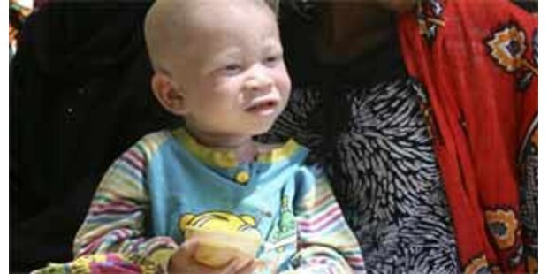 Sechsjähriges Albino-Mädchen in Burundi getötet