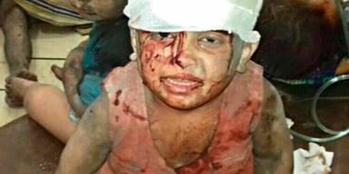 Aleppo: Kinder in Selbstmord getrieben