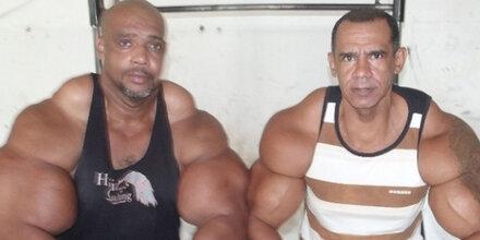 Brüder spritzen seit 30 Jahren Anabolika