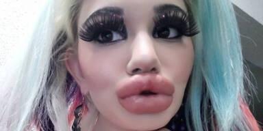 SIE hat die dicksten Lippen der Welt