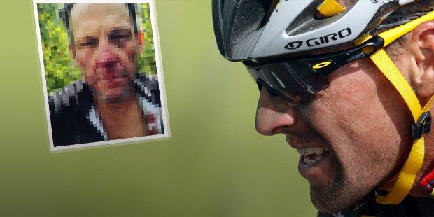 Armstrong stürzt schwer & zeigt Crash-Gesicht