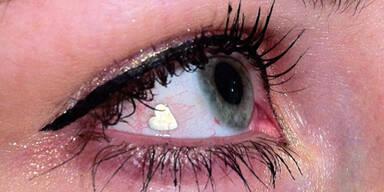 Gefährlicher Trend: Augenimplantate