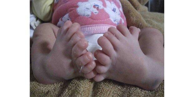 Baby mit 16 Zehen in China geboren