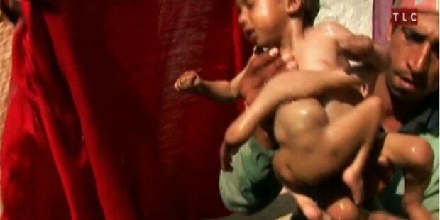 OP rettet Baby mit je 4 Armen und Beinen