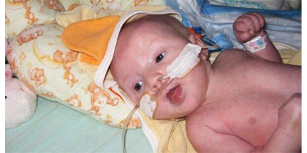 Unheilbar krankes Baby atmet weiter