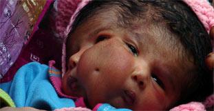 Baby mit zwei Gesichtern geboren