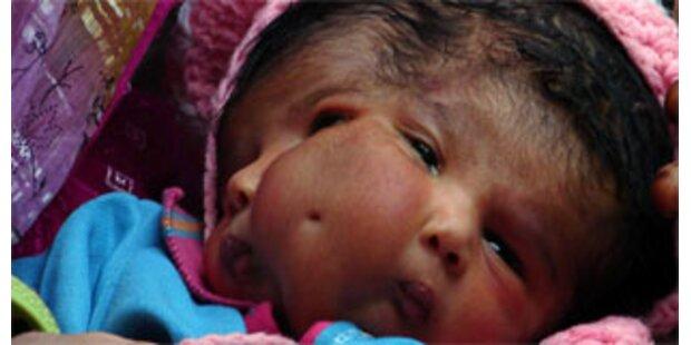Baby mit zwei Gesichtern gestorben