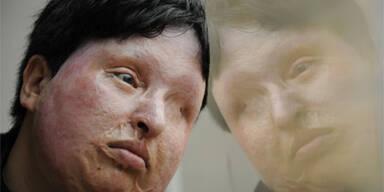 Blinde Iranerin darf Peiniger blenden