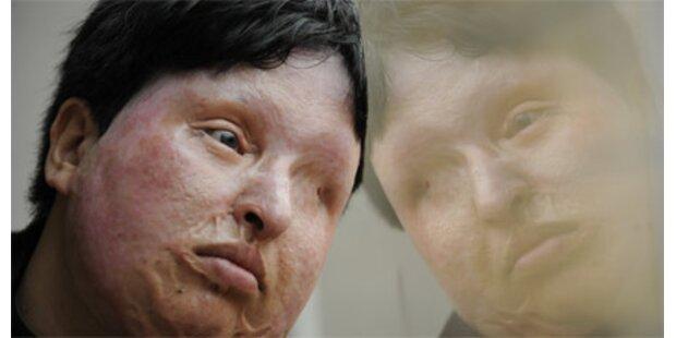 Mann verunstaltete Frau mit Säure