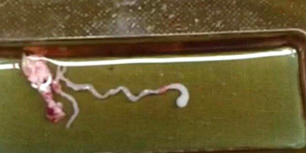 Bub hatte 8 cm langen Wurm im Kopf