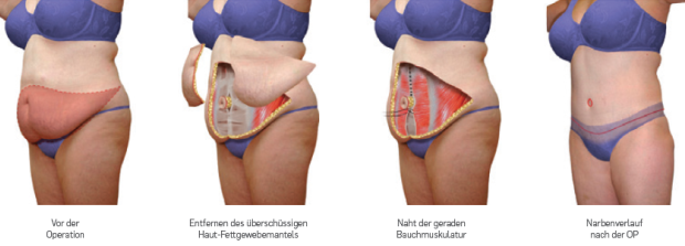 bauch2.PNG