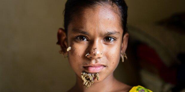 Dieses Mädchen ist die erste Baum-Frau der Welt