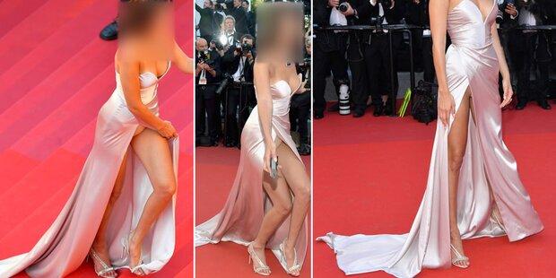 Cannes: Peinlicher Höschenblitzer