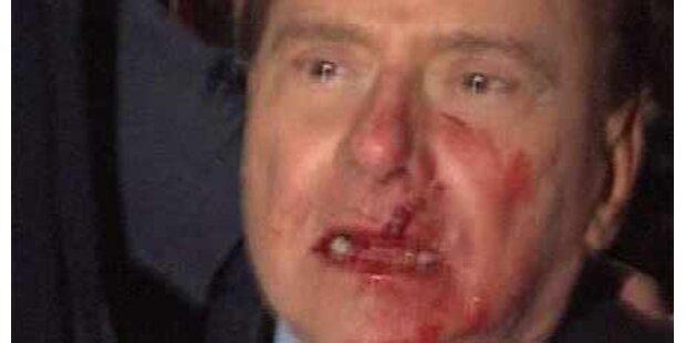 Berlusconi schwerer verletzt als gedacht