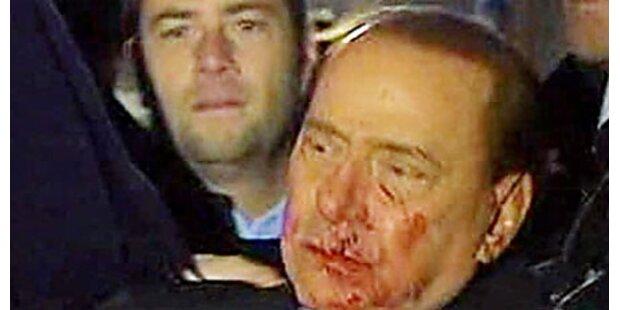 Berlusconi kann kaum etwas essen