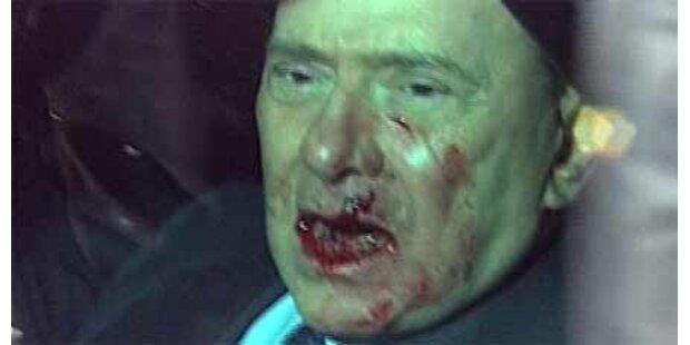 Berlusconi will mit Verletzungen werben