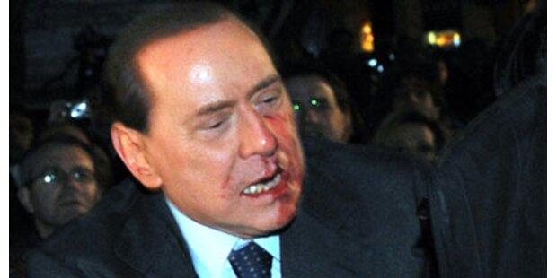 Berlusconi vergibt seinem Attentäter