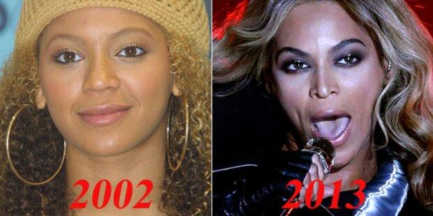 Beyoncé: Hatte sie eine Nasen-OP?