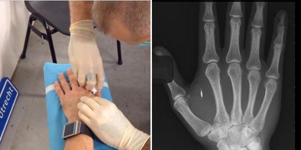 Bitcoins-Mikrochips in Hände implantiert