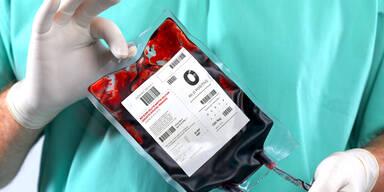 Blutspenden: Erste Schritte Richtung Gleichstellung