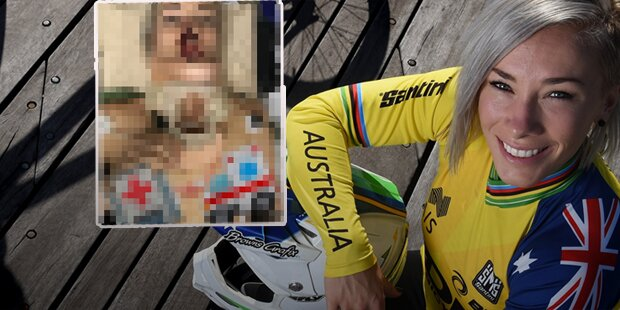 BMX-Star zeigt Horror-Verletzungen