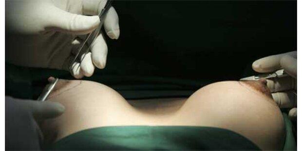 Deutsche bekam gegen ihren Willen Brustimplantate