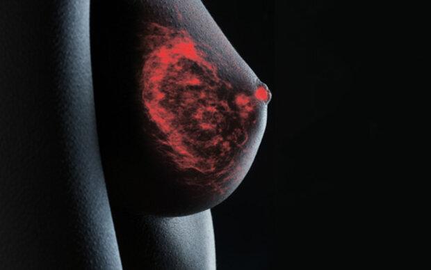 324.000 Mammografie-Einladungen verschickt