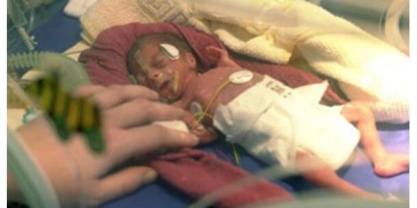 Kind  in Oxford zwei Tage nach Tod der Mutter geboren