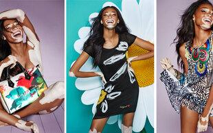 Model mit Hautkrankheit : Chantelle Winnie startet durch