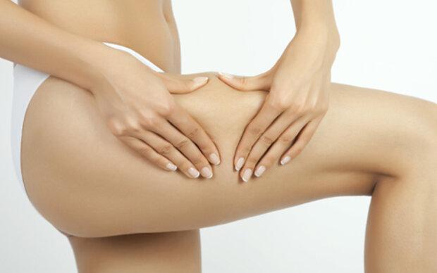 Das sind die 10 besten Tipps gegen Cellulite